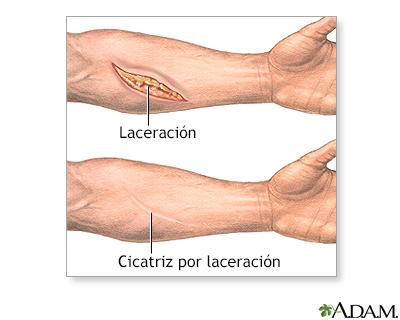 Extirpación quirúrgica de una cicatriz - Serie