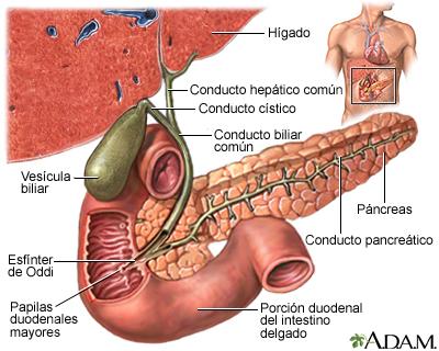 Cancer biliar en ingles - bijuterii-anca.ro, Cancer de prostata ingles
