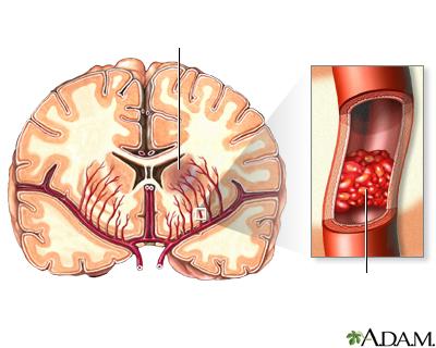 Vasos Sanguineos Del Cerebro Los Vasos Sanguíneos Del