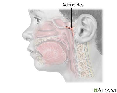 Adenoidectomía - Serie